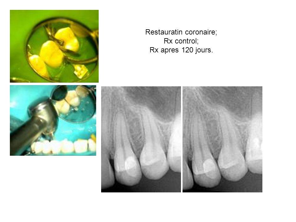 Restauratin coronaire; Rx control; Rx apres 120 jours.