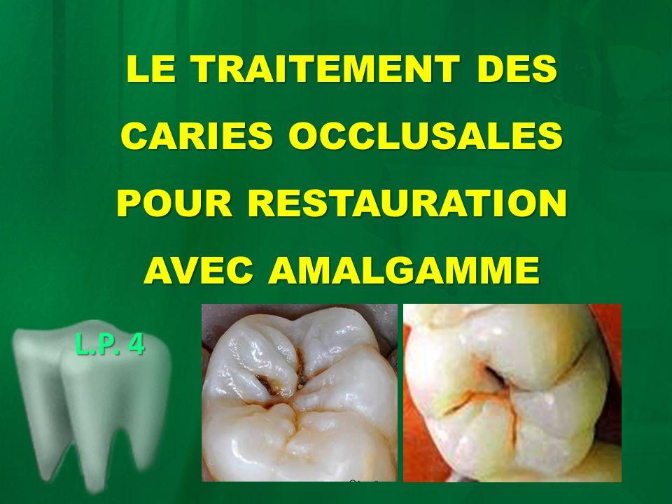 LE TRAITEMENT DES CARIES OCCLUSALES POUR RESTAURATION AVEC AMALGAMME