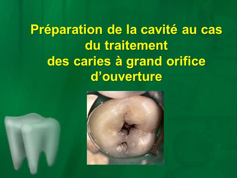 Préparation de la cavité au cas du traitement