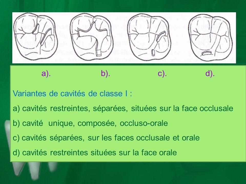 a). b). c). d). Variantes de cavités de classe I :