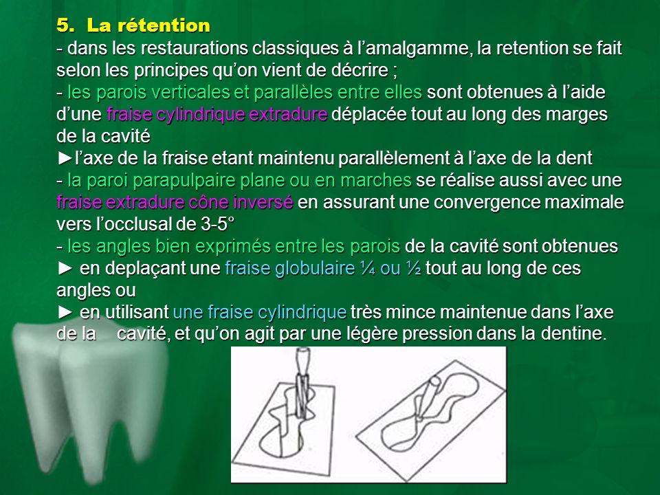 5. La rétention - dans les restaurations classiques à l'amalgamme, la retention se fait selon les principes qu'on vient de décrire ;