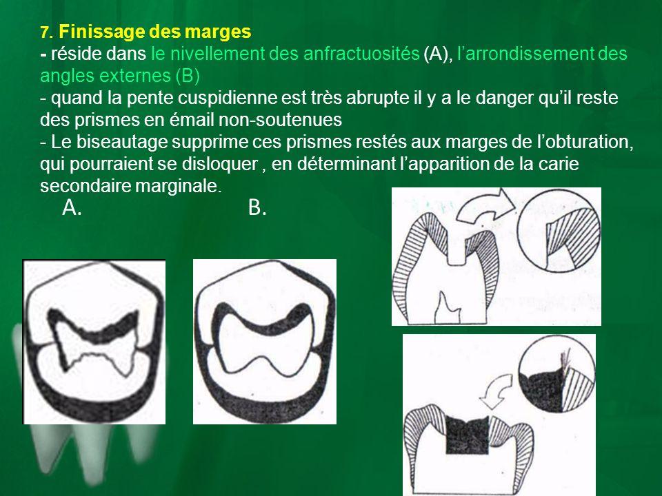 7. Finissage des marges - réside dans le nivellement des anfractuosités (A), l'arrondissement des angles externes (B)