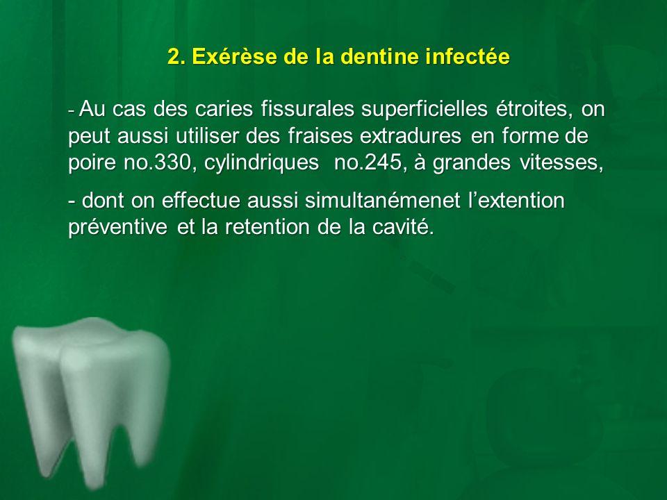 2. Exérèse de la dentine infectée