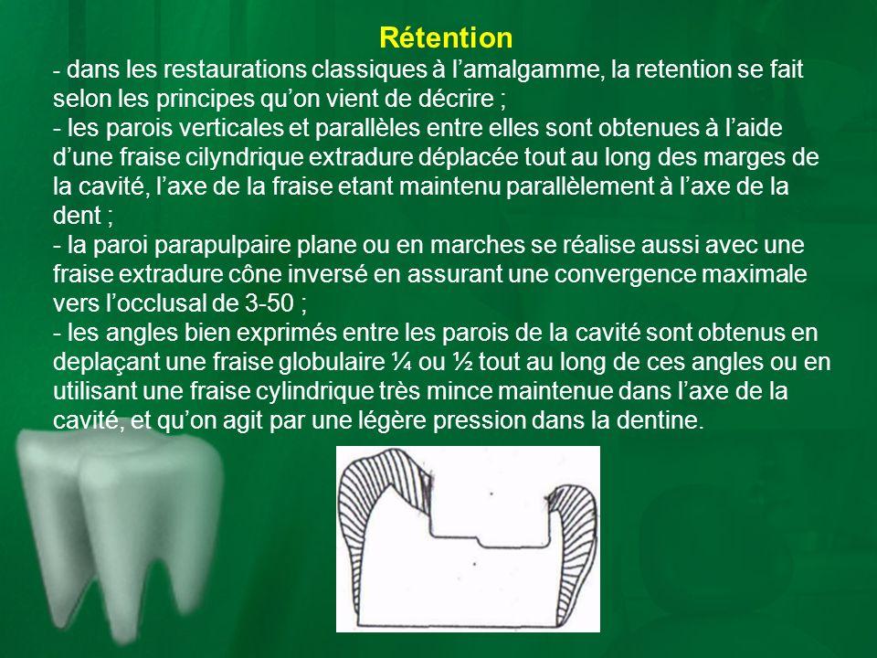 Rétention - dans les restaurations classiques à l'amalgamme, la retention se fait selon les principes qu'on vient de décrire ;