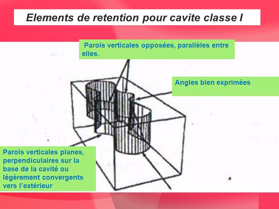 Elements de retention pour cavite classe I