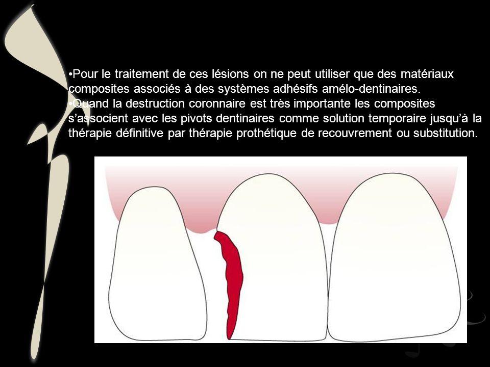 Pour le traitement de ces lésions on ne peut utiliser que des matériaux composites associés à des systèmes adhésifs amélo-dentinaires.