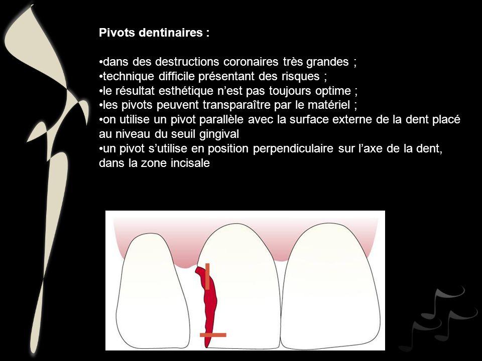 Pivots dentinaires : dans des destructions coronaires très grandes ; technique difficile présentant des risques ;