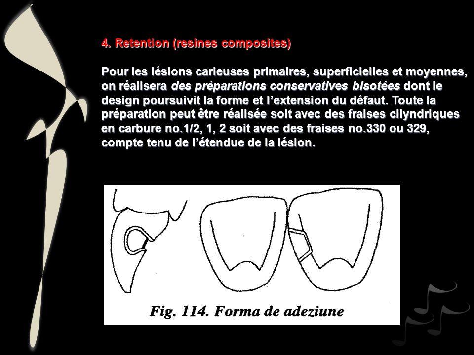 4. Retention (resines composites)