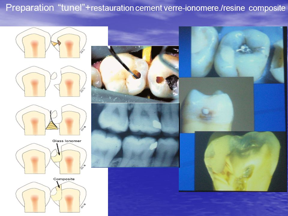 Preparation tunel +restauration cement verre-ionomere