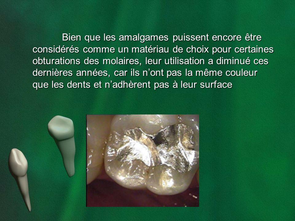 Bien que les amalgames puissent encore être considérés comme un matériau de choix pour certaines obturations des molaires, leur utilisation a diminué ces dernières années, car ils n'ont pas la même couleur que les dents et n'adhèrent pas à leur surface