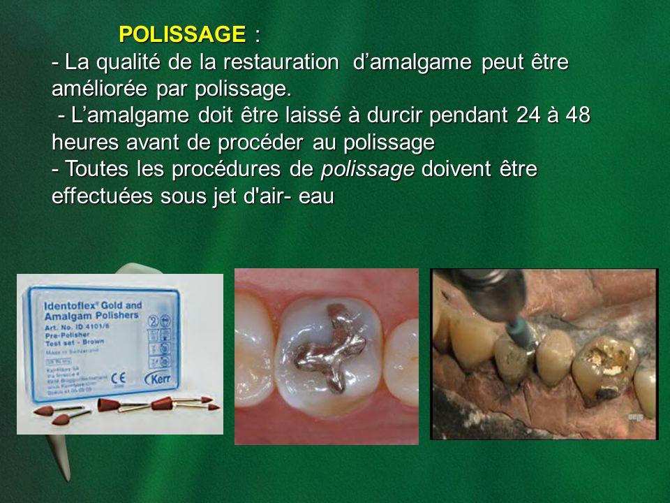 POLISSAGE : - La qualité de la restauration d'amalgame peut être améliorée par polissage.