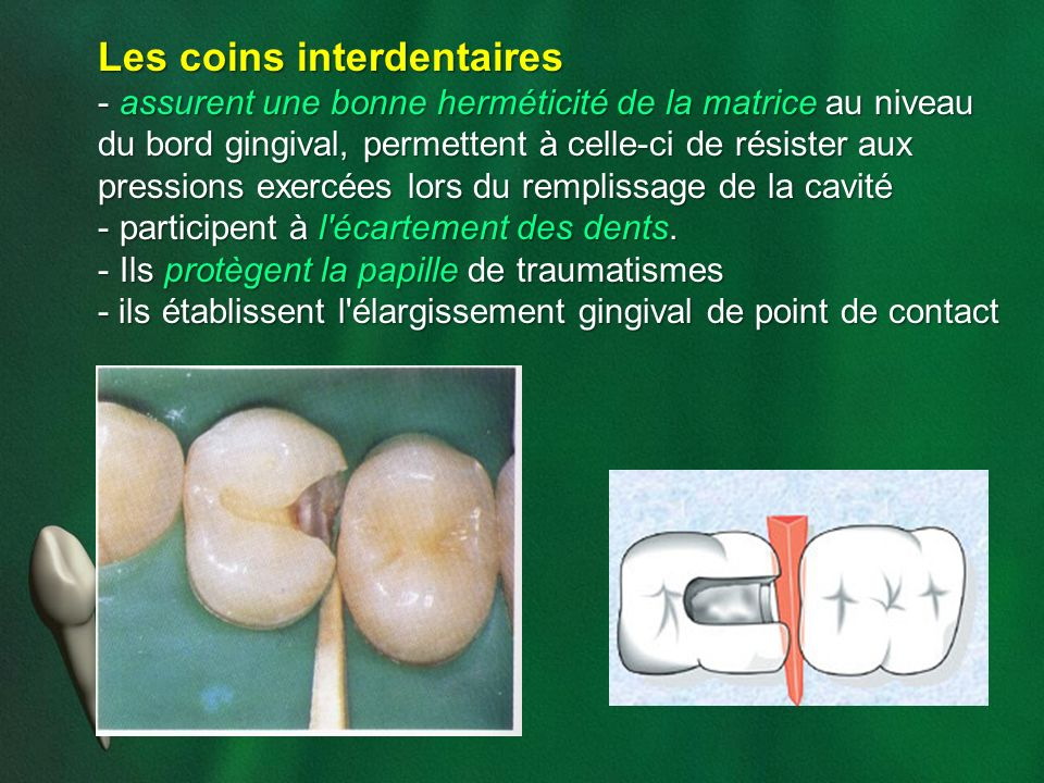 Les coins interdentaires