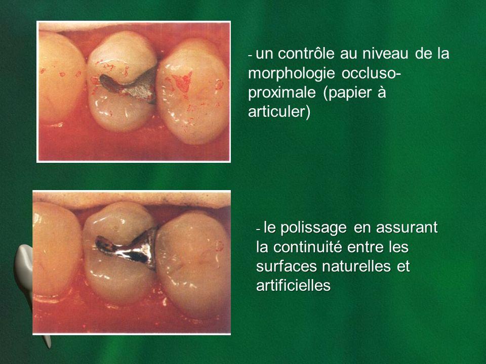 morphologie occluso-proximale (papier à articuler)