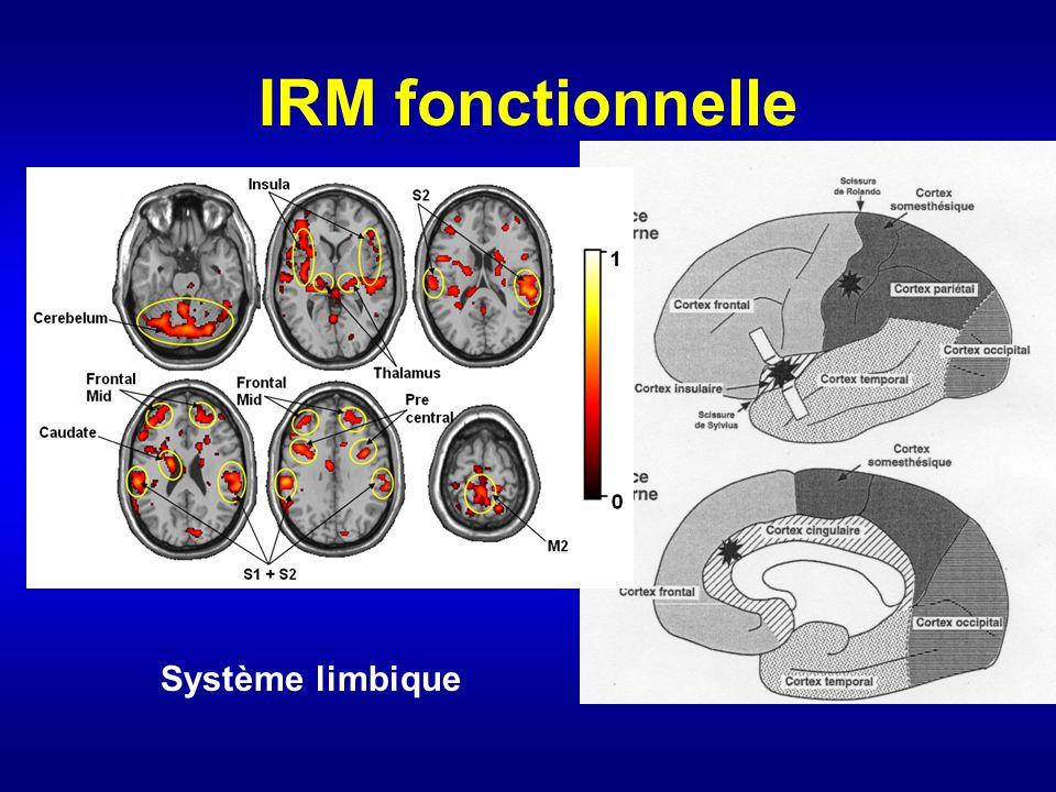 IRM fonctionnelle Système limbique