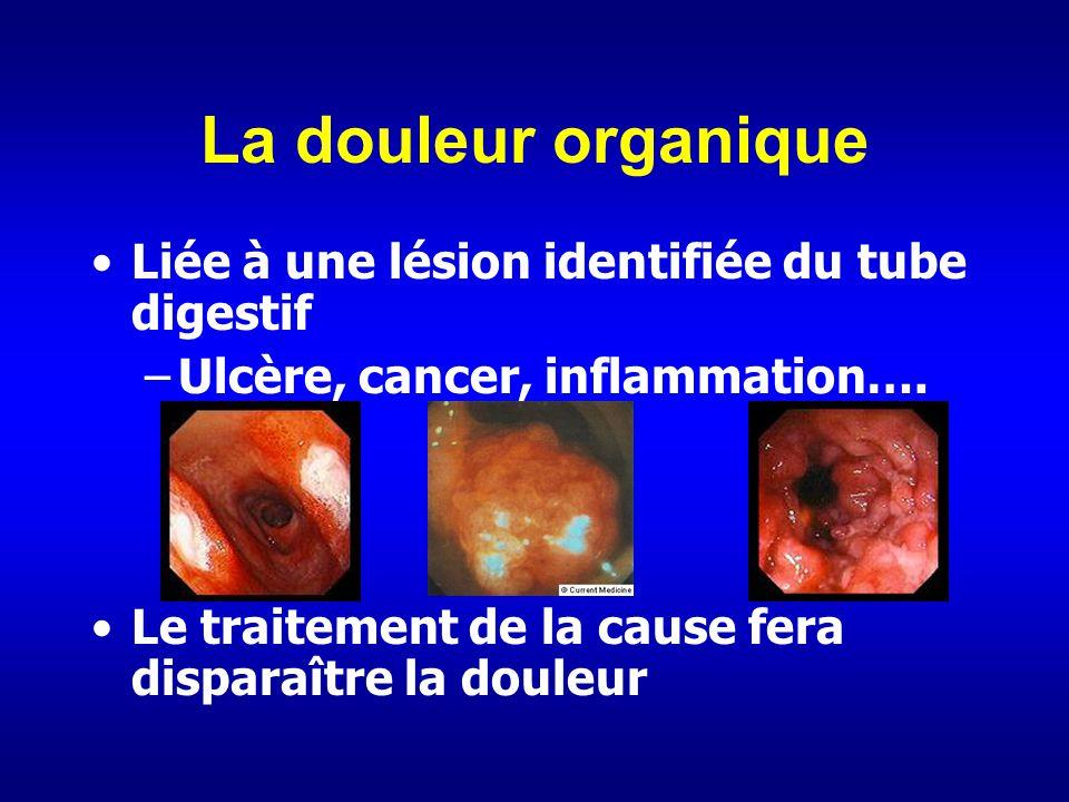 La douleur organique Liée à une lésion identifiée du tube digestif