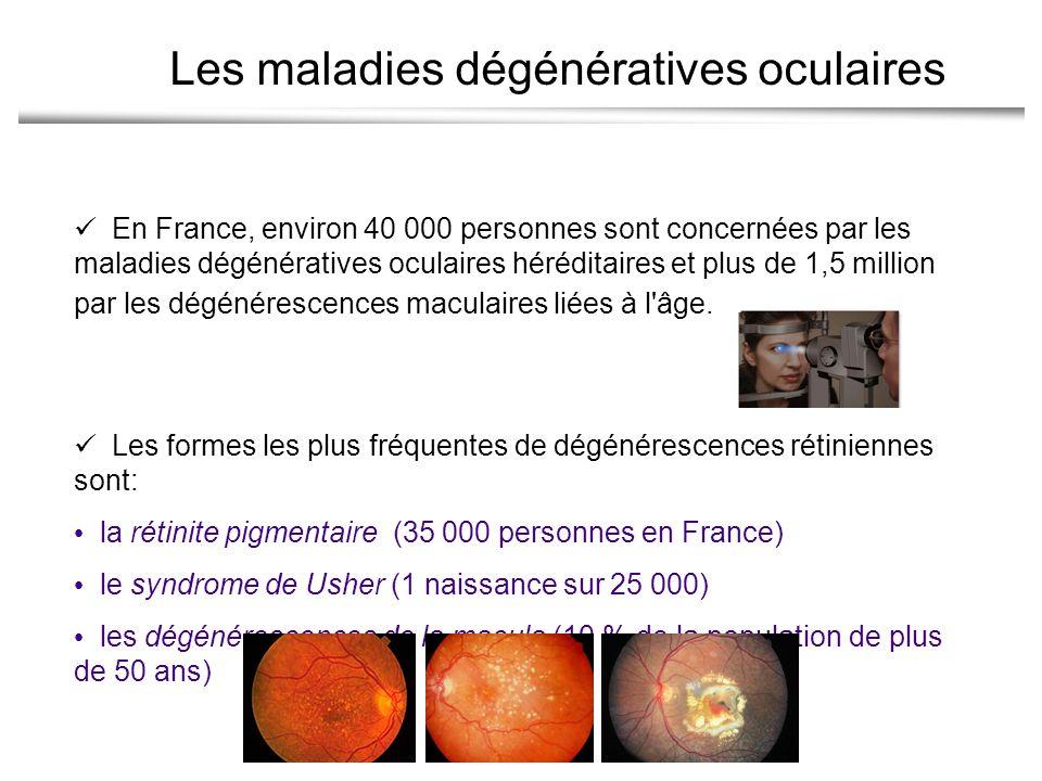 Les maladies dégénératives oculaires