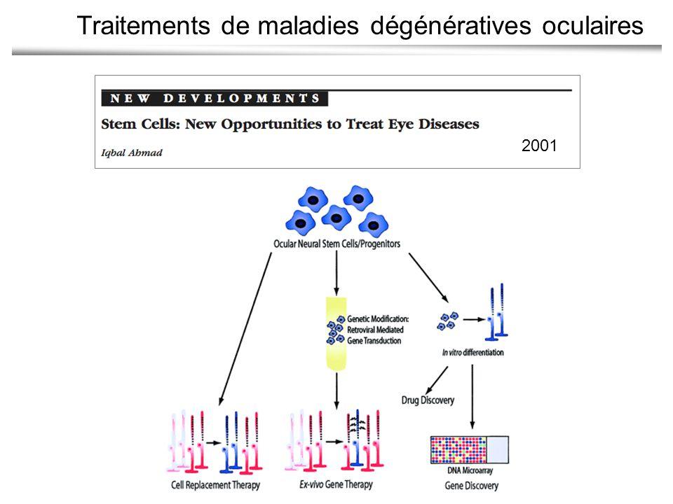 Traitements de maladies dégénératives oculaires