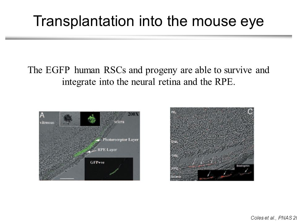 Transplantation into the mouse eye