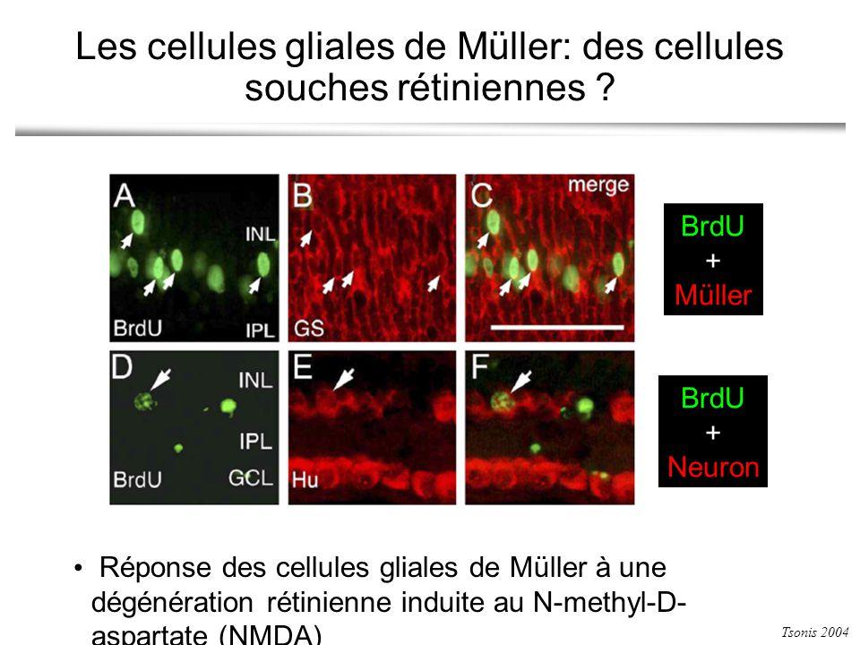 Les cellules gliales de Müller: des cellules souches rétiniennes