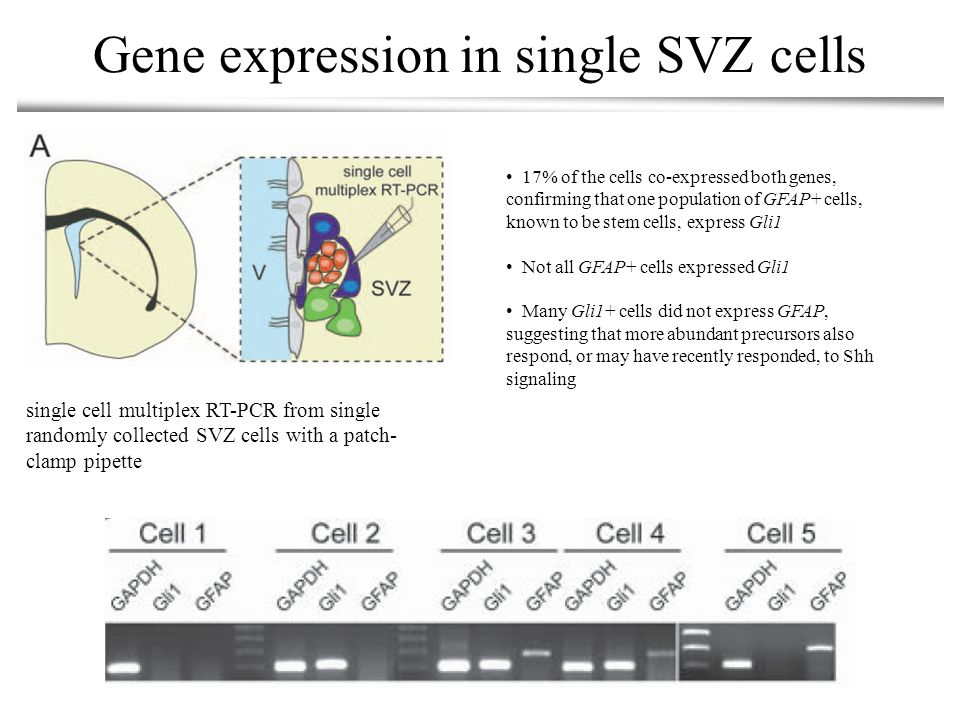 Gene expression in single SVZ cells