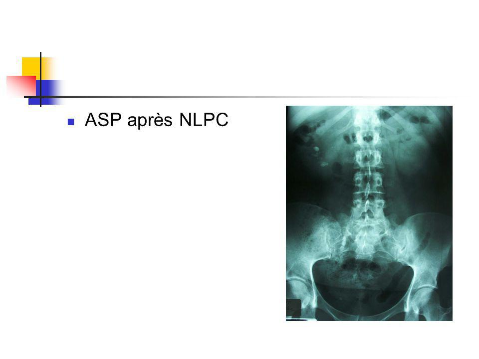 ASP après NLPC