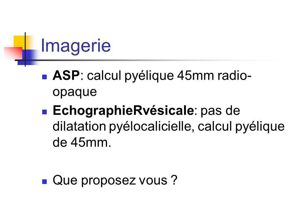 Imagerie ASP: calcul pyélique 45mm radio-opaque