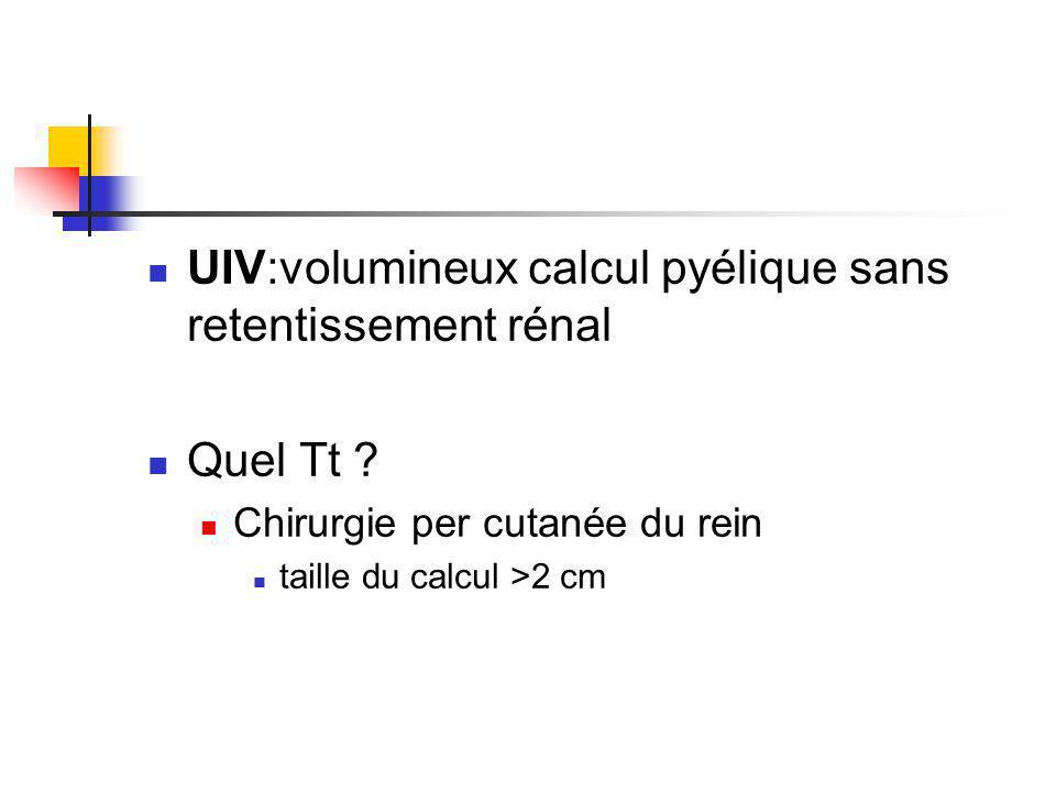 UIV:volumineux calcul pyélique sans retentissement rénal