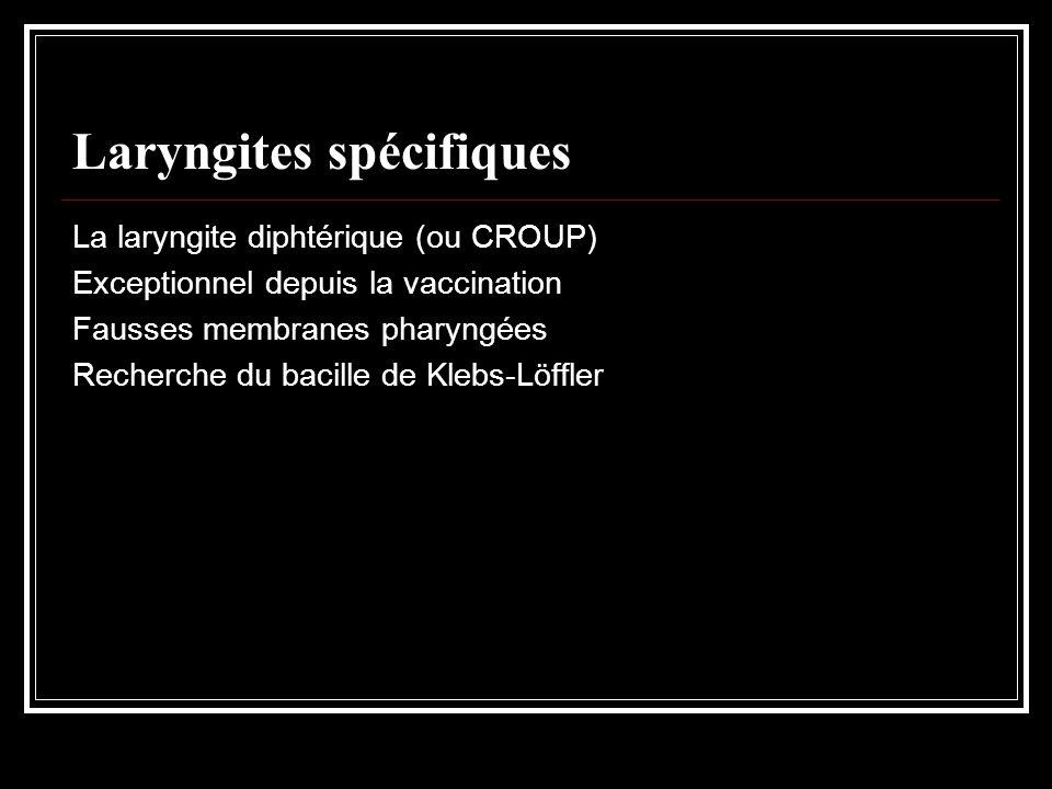 Laryngites spécifiques