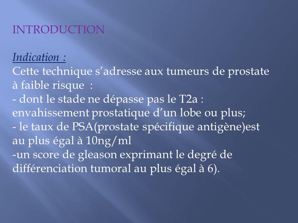 INTRODUCTION Indication : Cette technique s'adresse aux tumeurs de prostate. à faible risque : dont le stade ne dépasse pas le T2a :