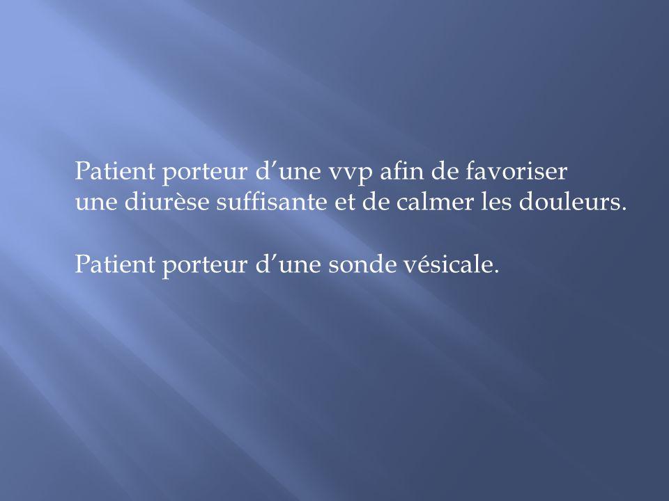 Patient porteur d'une vvp afin de favoriser