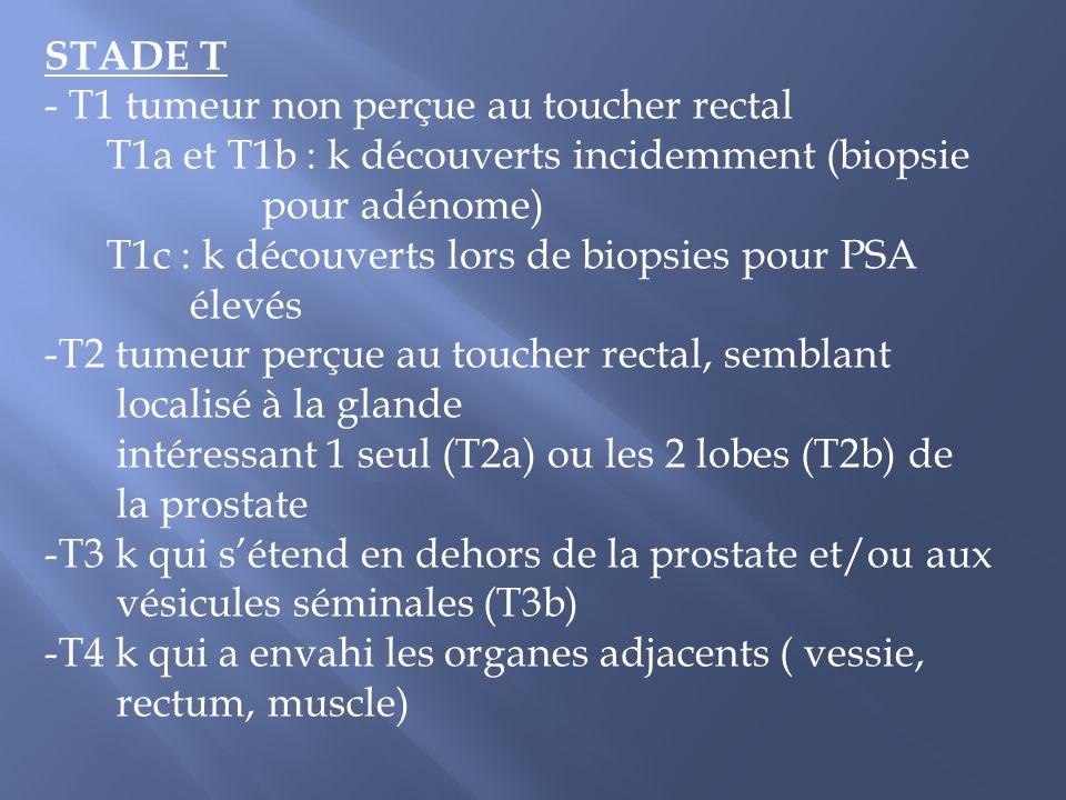 STADE T - T1 tumeur non perçue au toucher rectal. T1a et T1b : k découverts incidemment (biopsie. pour adénome)