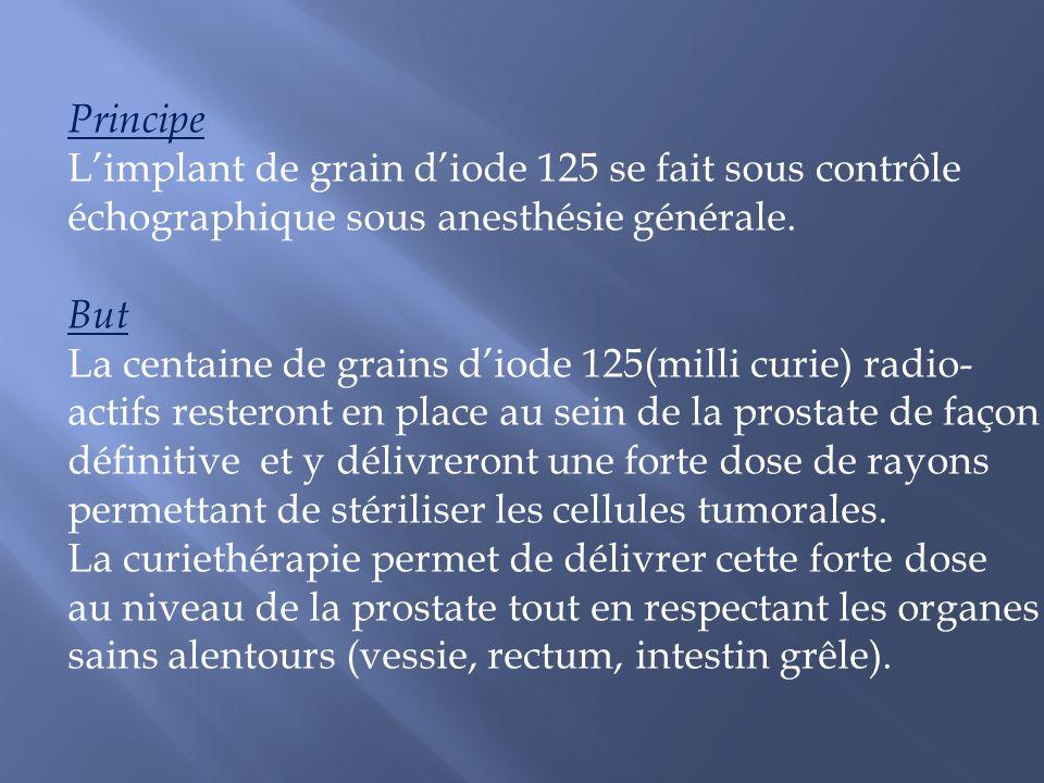 Principe L'implant de grain d'iode 125 se fait sous contrôle. échographique sous anesthésie générale.
