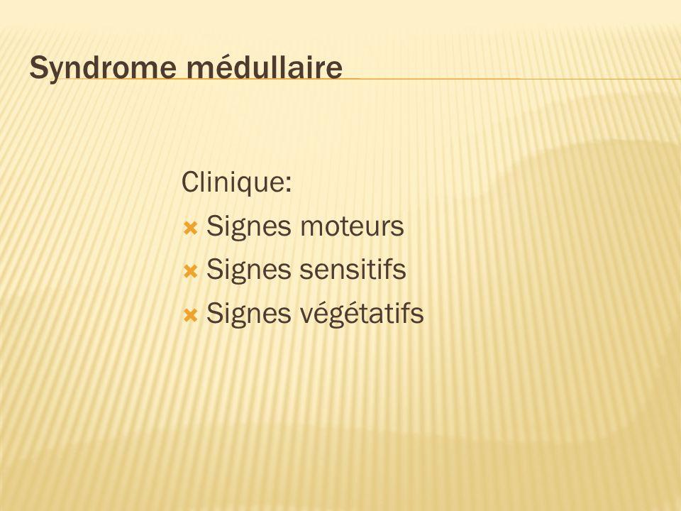 Syndrome médullaire Clinique: Signes moteurs Signes sensitifs