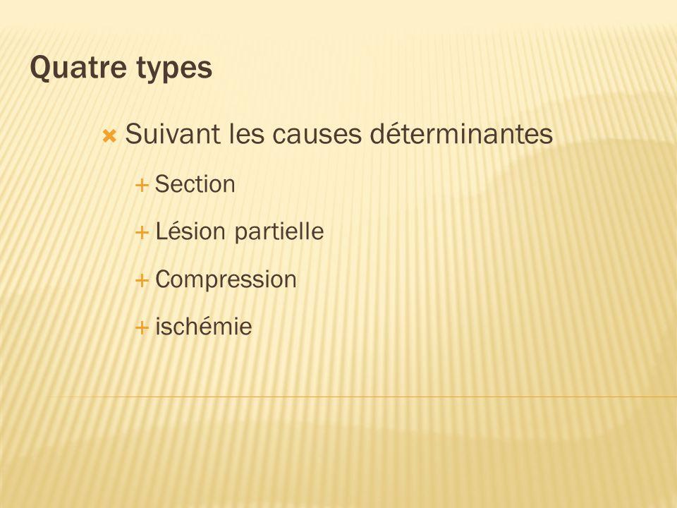 Quatre types Suivant les causes déterminantes Section Lésion partielle