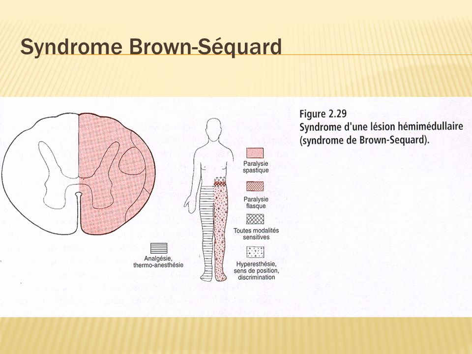 Syndrome Brown-Séquard