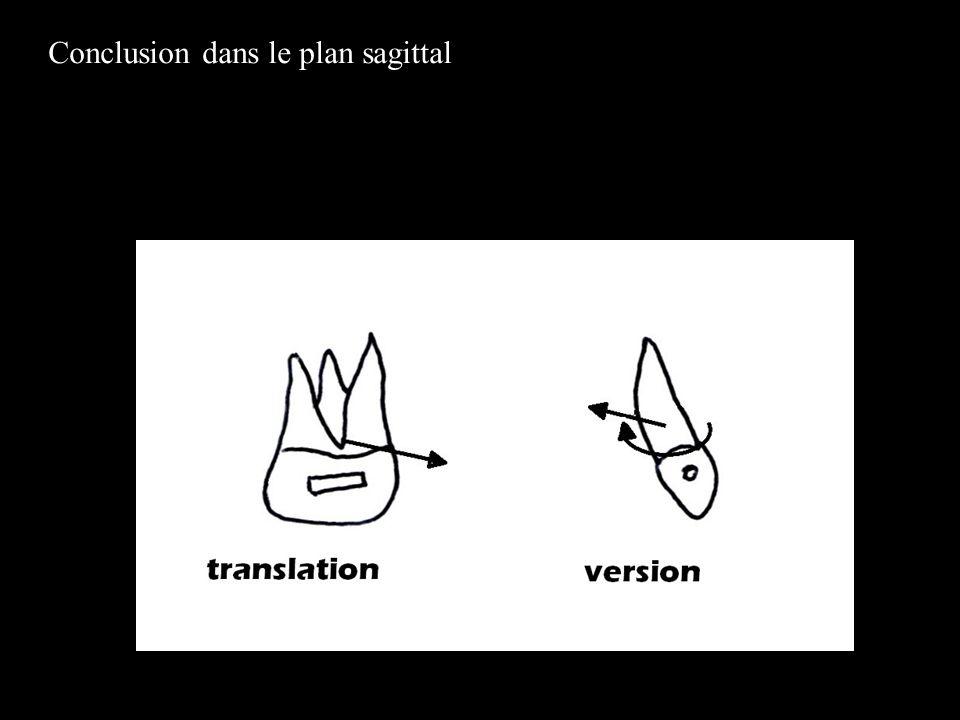 Conclusion dans le plan sagittal