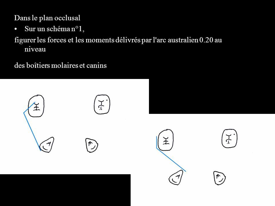 4 éléments Dans le plan occlusal Sur un schéma n°1,