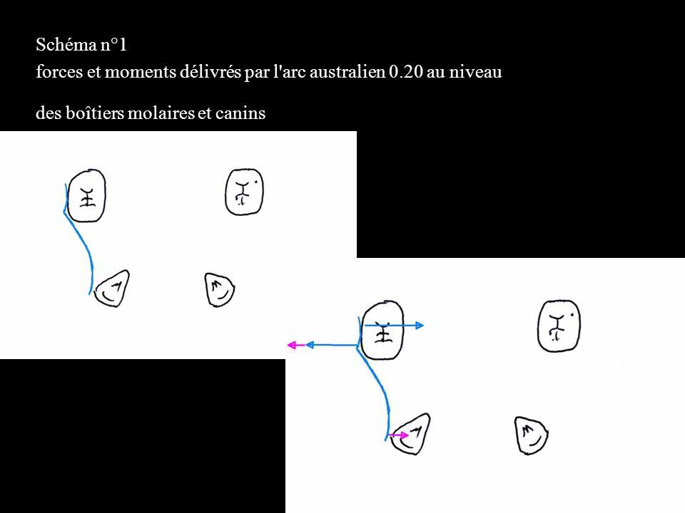 Schéma n°1 forces et moments délivrés par l arc australien 0.20 au niveau. des boîtiers molaires et canins.