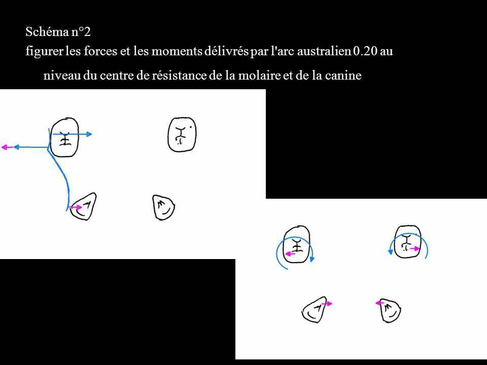 Schéma n°2 figurer les forces et les moments délivrés par l arc australien 0.20 au niveau du centre de résistance de la molaire et de la canine.