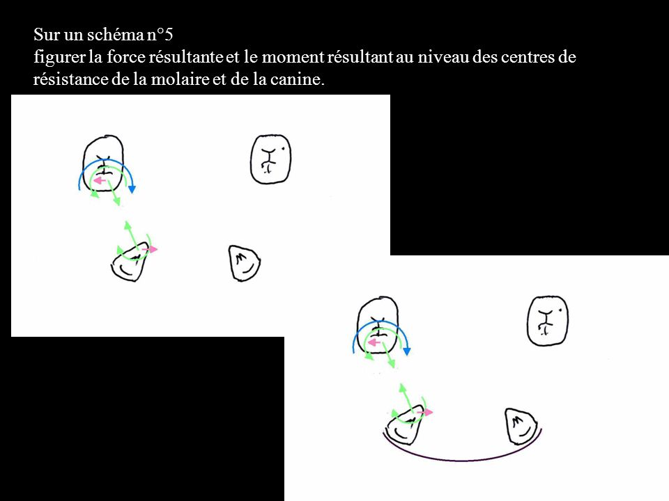 Sur un schéma n°5 figurer la force résultante et le moment résultant au niveau des centres de résistance de la molaire et de la canine.