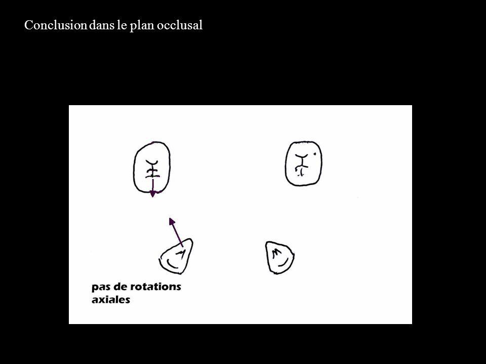 Conclusion dans le plan occlusal