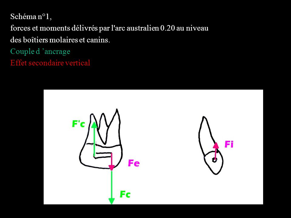 Schéma n°1, forces et moments délivrés par l arc australien 0.20 au niveau. des boîtiers molaires et canins.