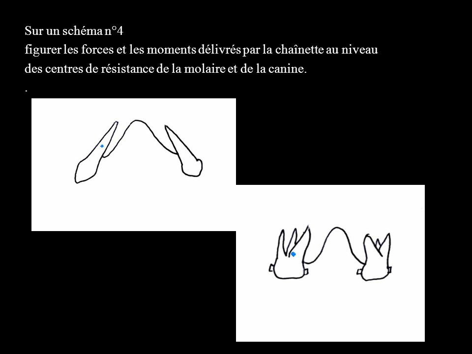 4 éléments Sur un schéma n°4