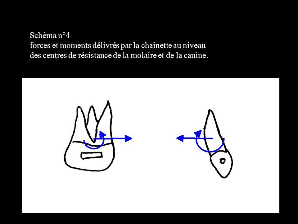 4 éléments Schéma n°4. forces et moments délivrés par la chaînette au niveau.