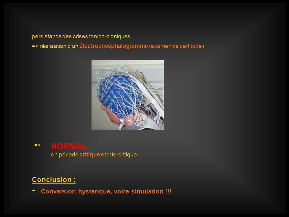 NORMAL Conclusion : = Conversion hystérique, voire simulation !!!