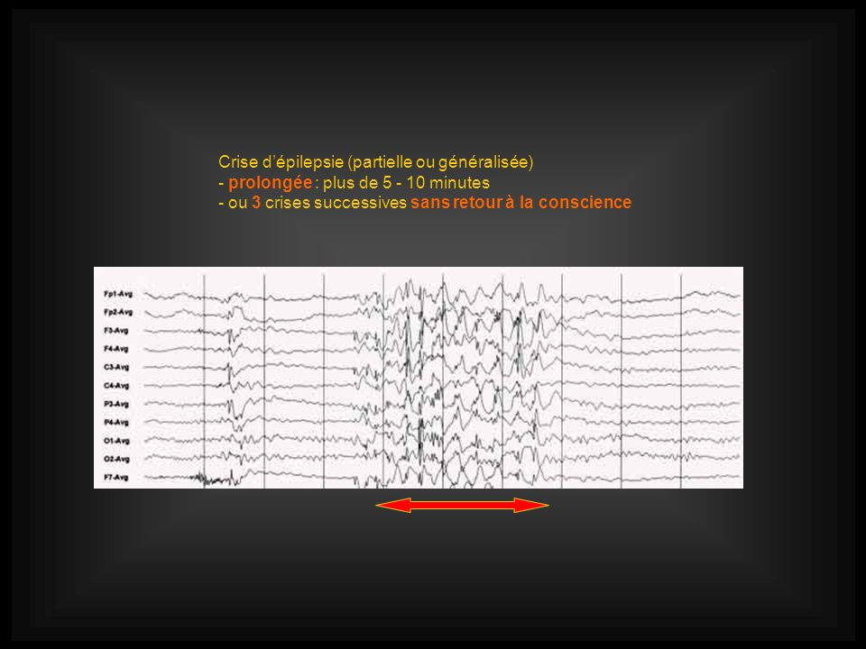 Crise d'épilepsie (partielle ou généralisée)