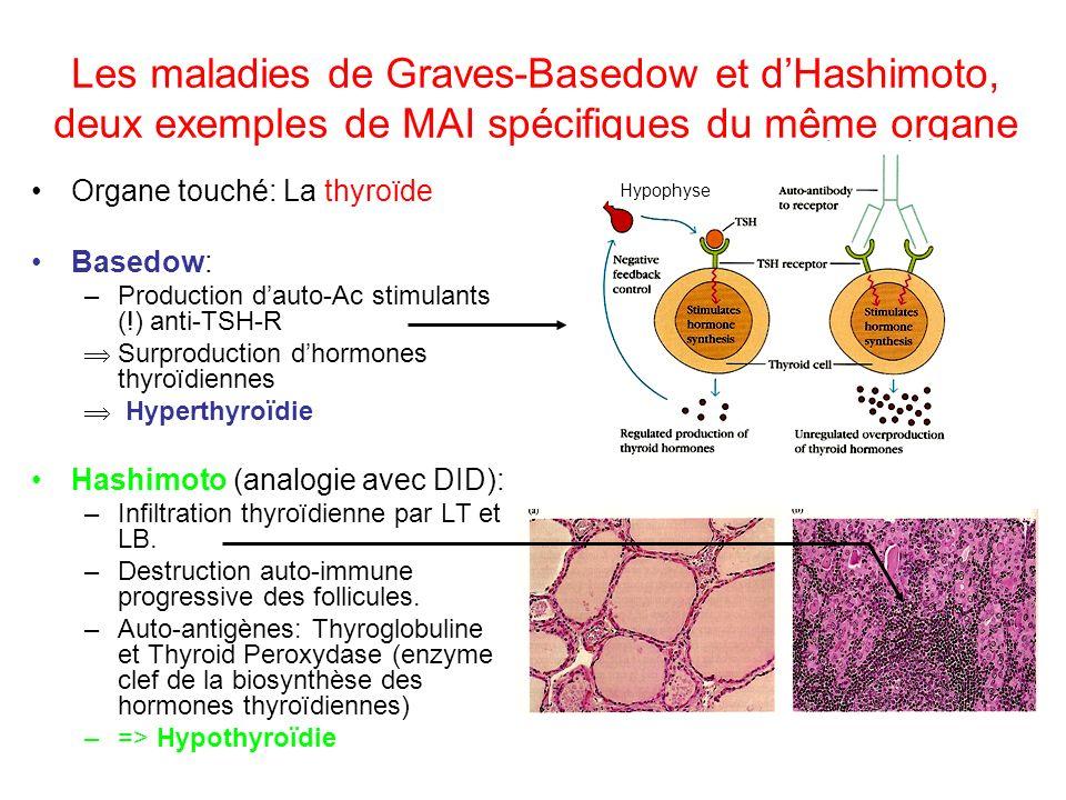 Les maladies de Graves-Basedow et d'Hashimoto, deux exemples de MAI spécifiques du même organe