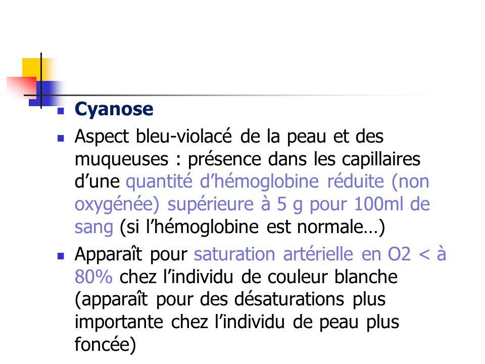 Cyanose