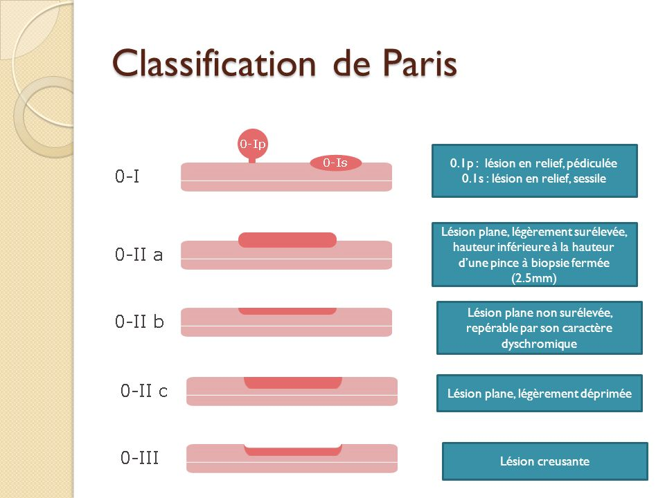 Classification de Paris