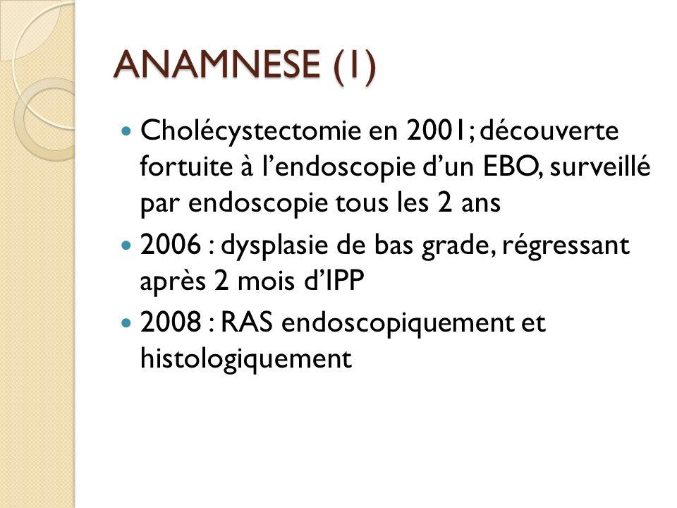ANAMNESE (1) Cholécystectomie en 2001; découverte fortuite à l'endoscopie d'un EBO, surveillé par endoscopie tous les 2 ans.
